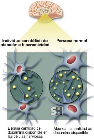 trastorno-deficit-atencion-hiperactividad